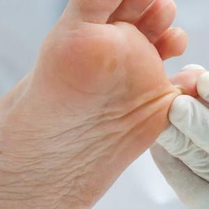 Tenir cura del peu diabètic